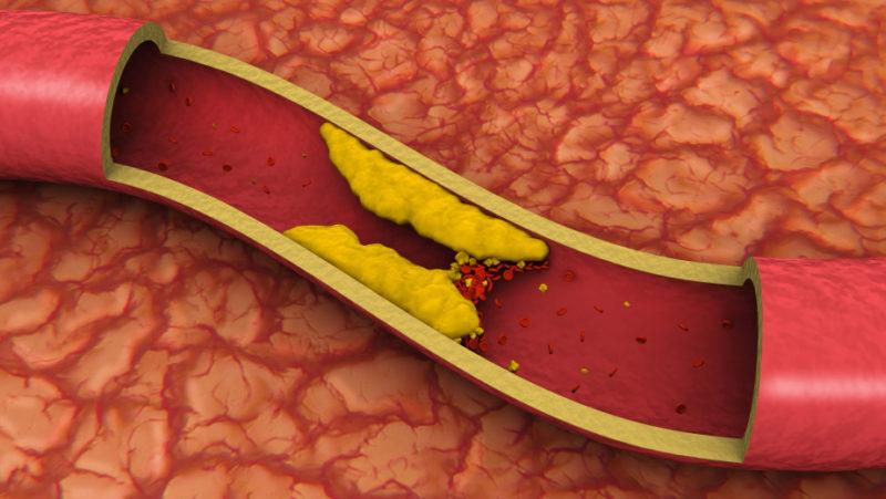 Излишнее содержание холестерина в организме