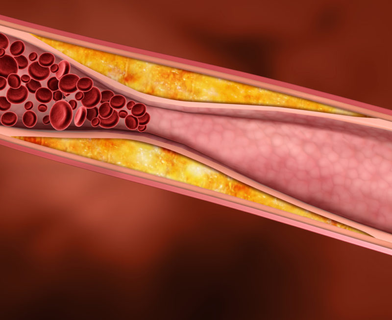 Нормализуется уровень холестерина в крови