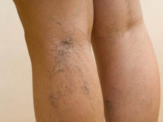 Варикозное расширение вен и иные проблемы с кровеносной системой