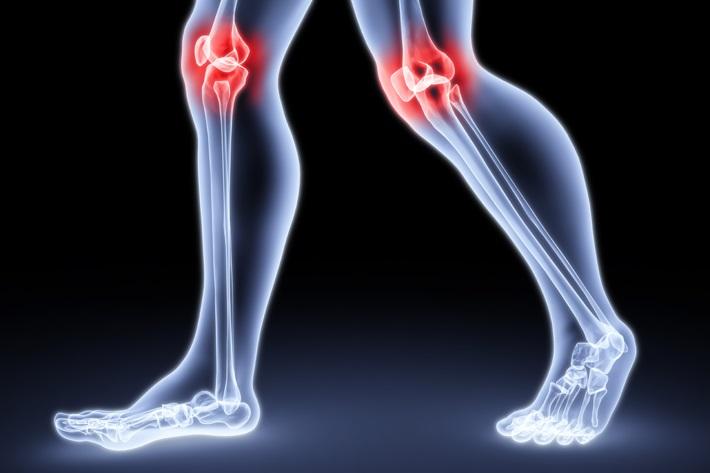 Облегчение приступа артроза и артрита
